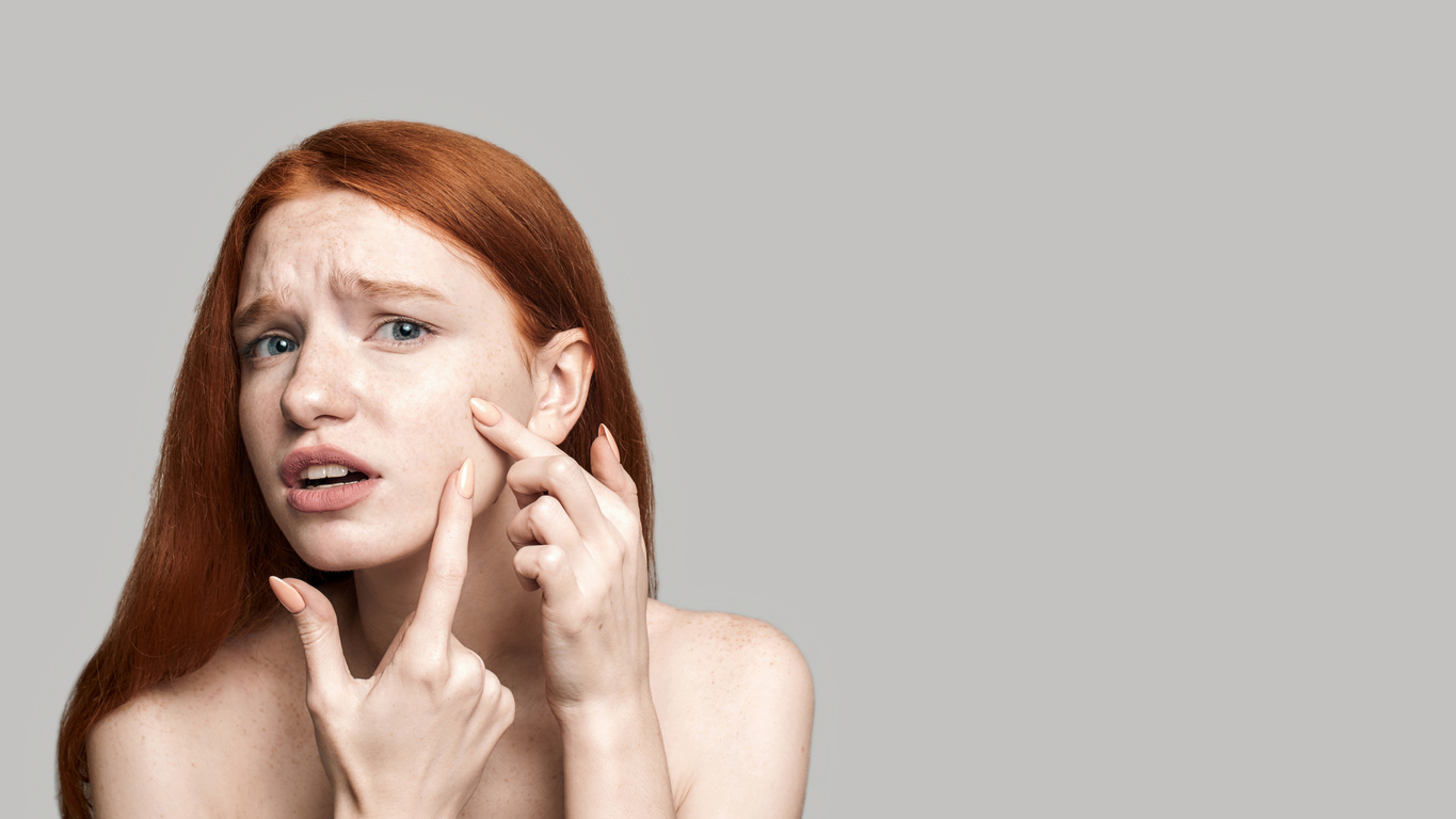 Young woman popping a pimple