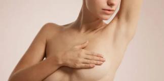 Galactorrhea Female breasts